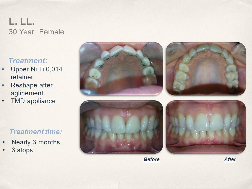 L. LL. 30 Year Female Treatment: Treatment time: