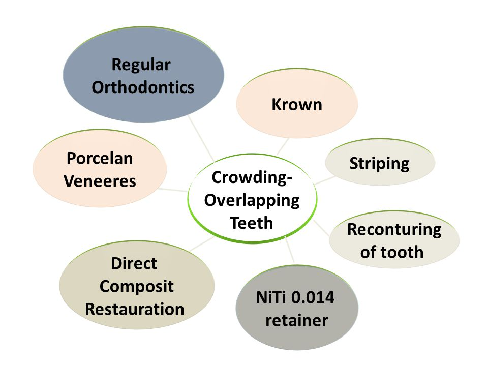 Regular Orthodontics. Krown. Porcelan. Veneeres. Striping. Crowding- Overlapping. Teeth. Reconturing.