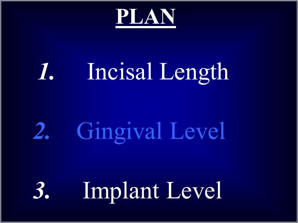 PLAN 1. Incisal Length 2. Gingival Level 3. Implant Level