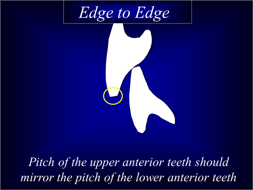 Edge to Edge Pitch of the upper anterior teeth should mirror the pitch of the lower anterior teeth