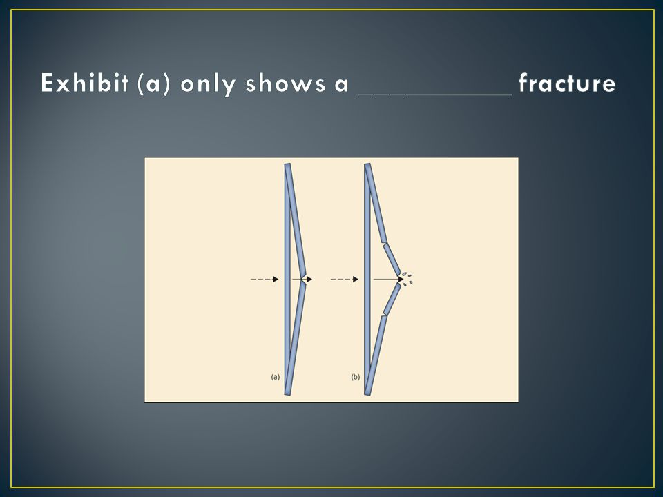 Exhibit (a) only shows a __________ fracture