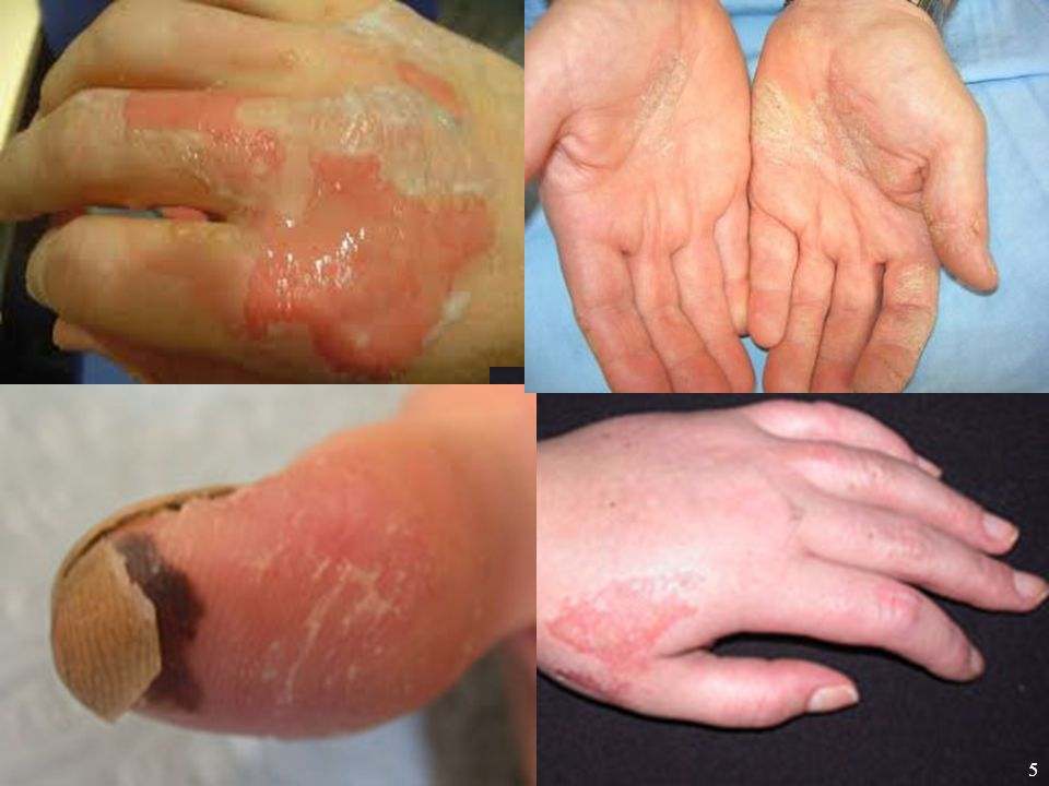 Four of these photos illustrate hand injuries caused by chemical exposures. These are not photos of Navy personnel… but they easily could be.