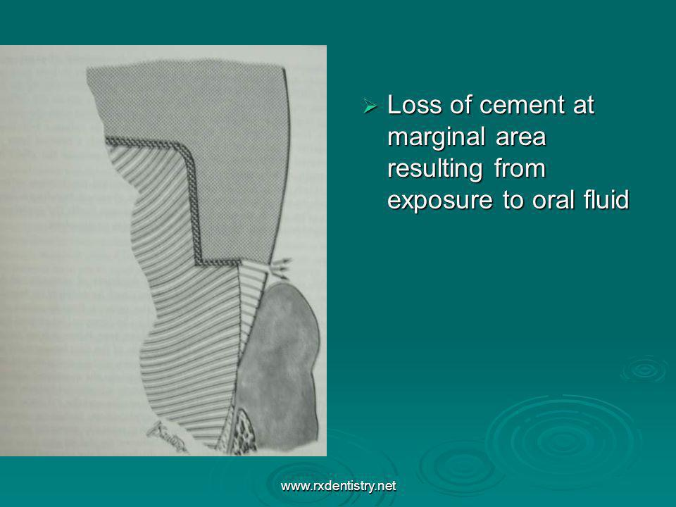 Loss of cement at marginal area resulting from exposure to oral fluid