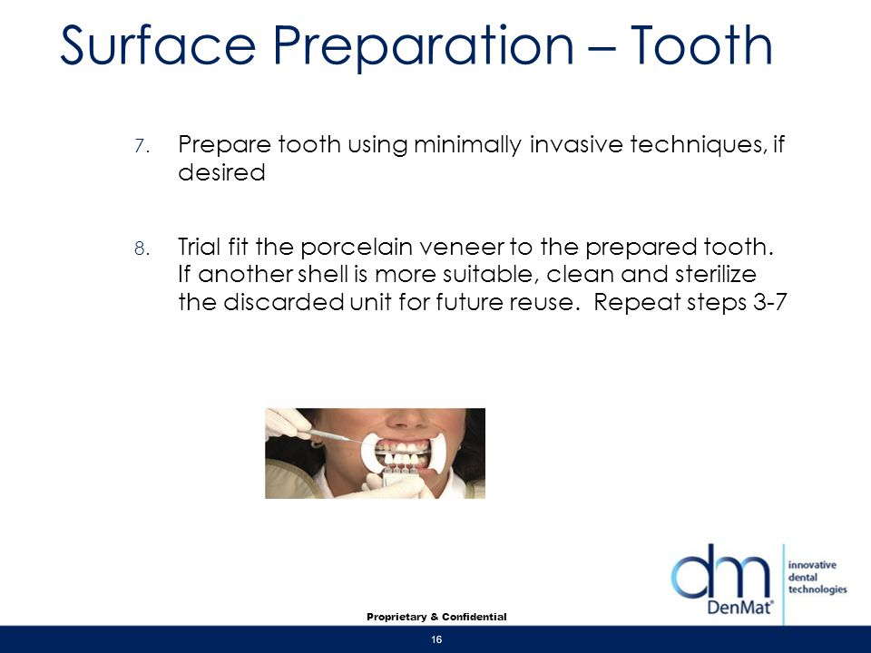 Surface Preparation – Tooth