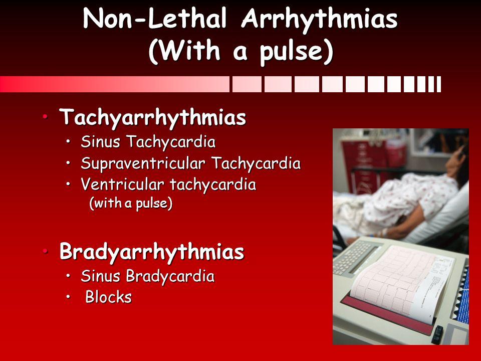 Non-Lethal Arrhythmias (With a pulse)