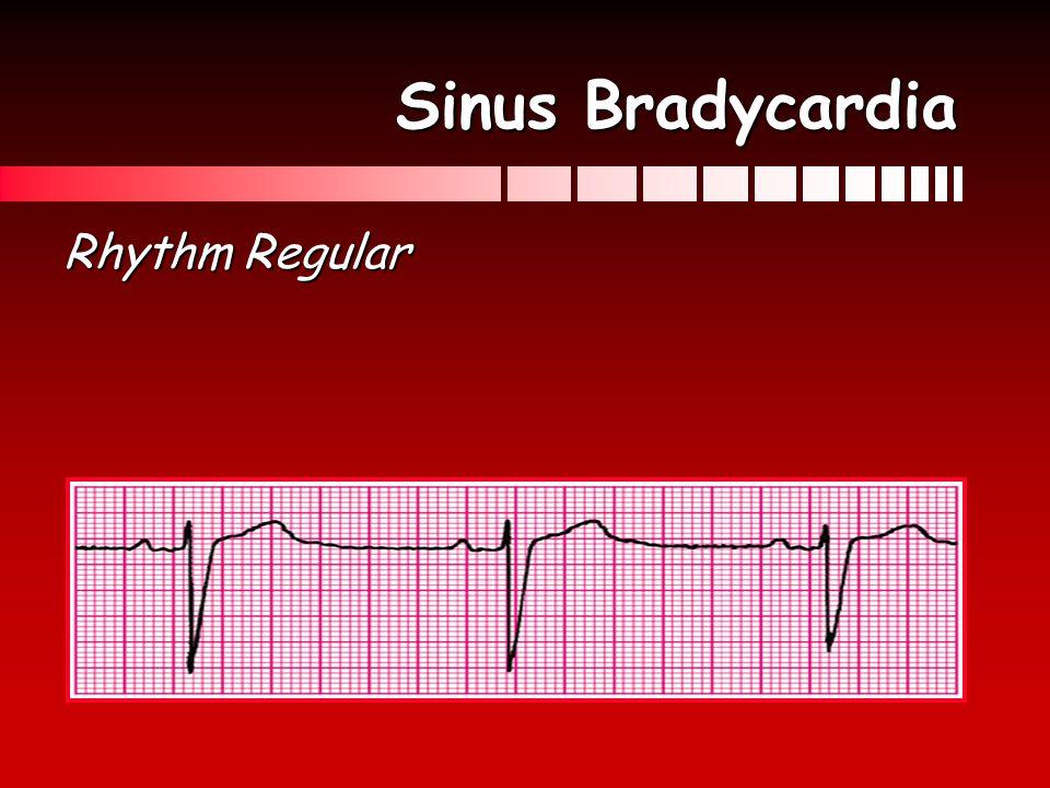 Sinus Bradycardia Rhythm Regular