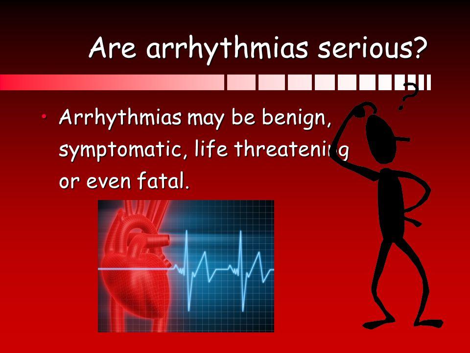 Are arrhythmias serious