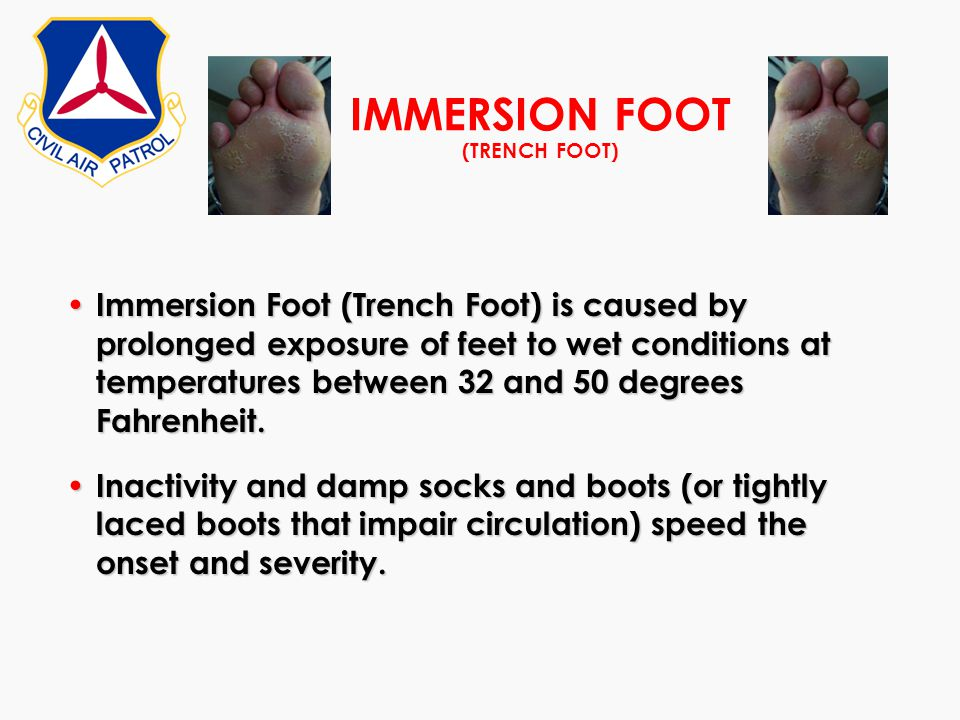 IMMERSION FOOT (TRENCH FOOT)