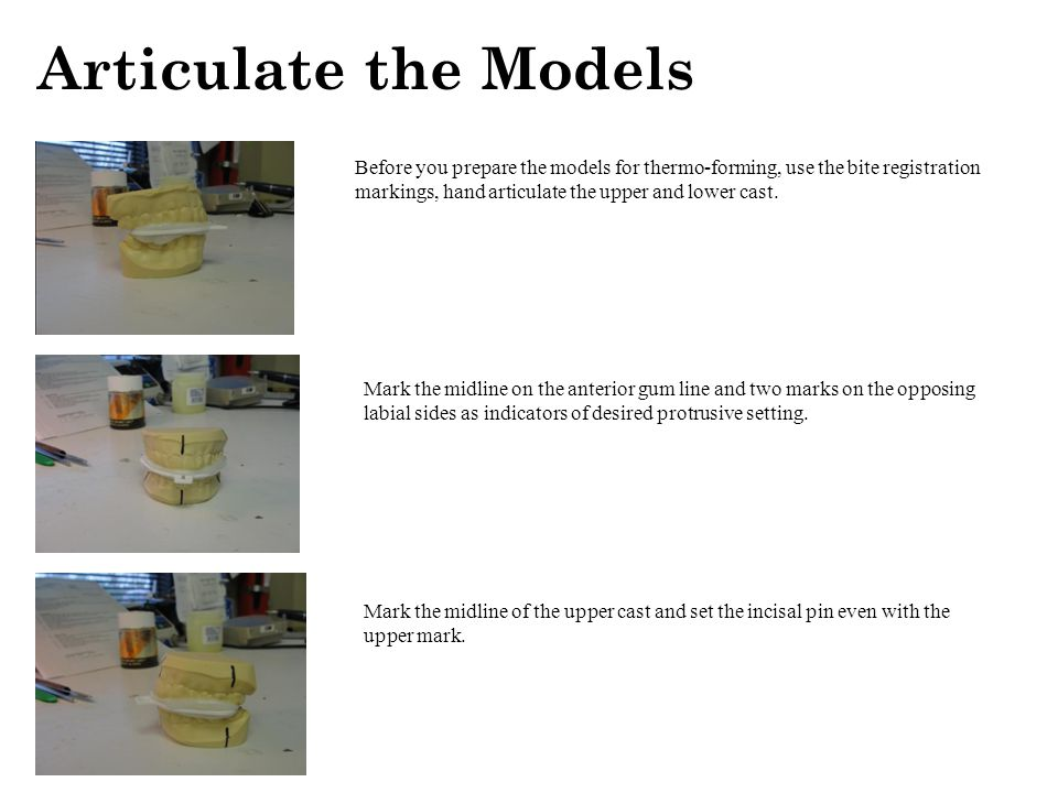 Articulate the Models Before you prepare the models for thermo-forming, use the bite registration markings, hand articulate the upper and lower cast.