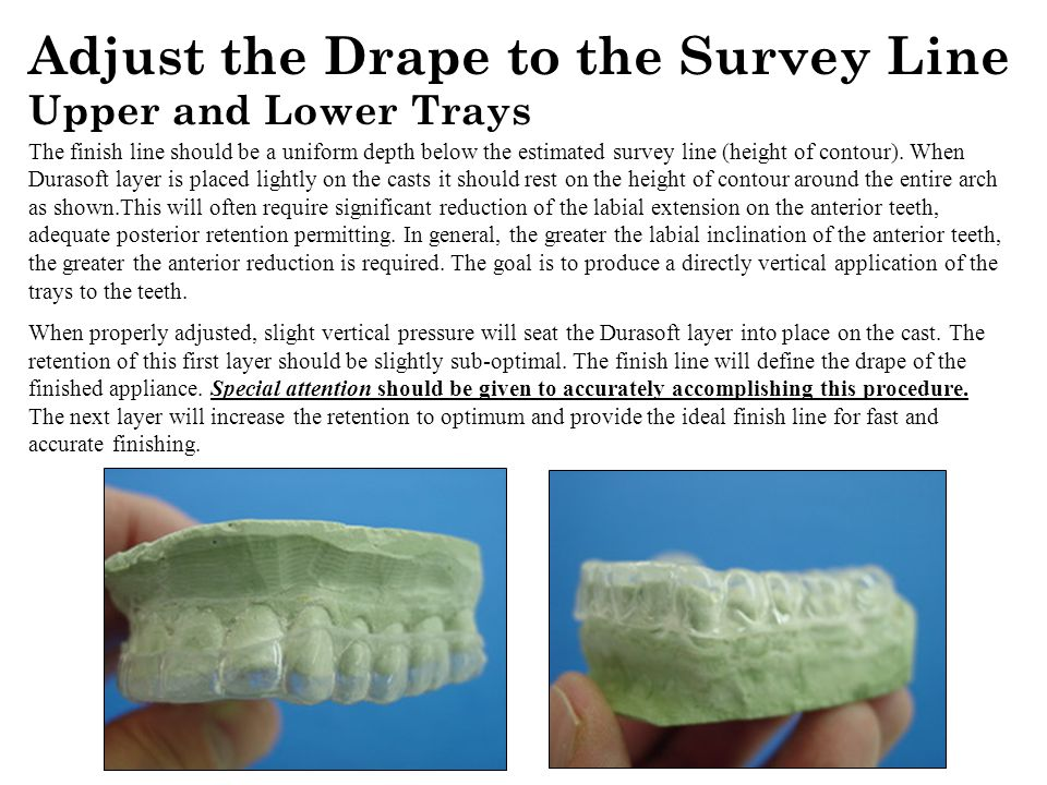 Adjust the Drape to the Survey Line