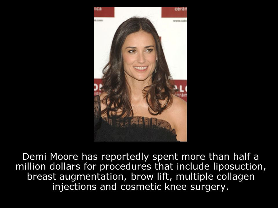 Demi Moore has reportedly spent more than half a million dollars for procedures that include liposuction, breast augmentation, brow lift, multiple collagen injections and cosmetic knee surgery.