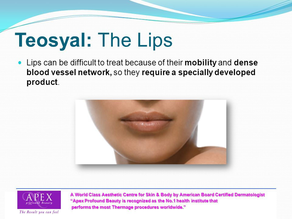 Teosyal: The Lips