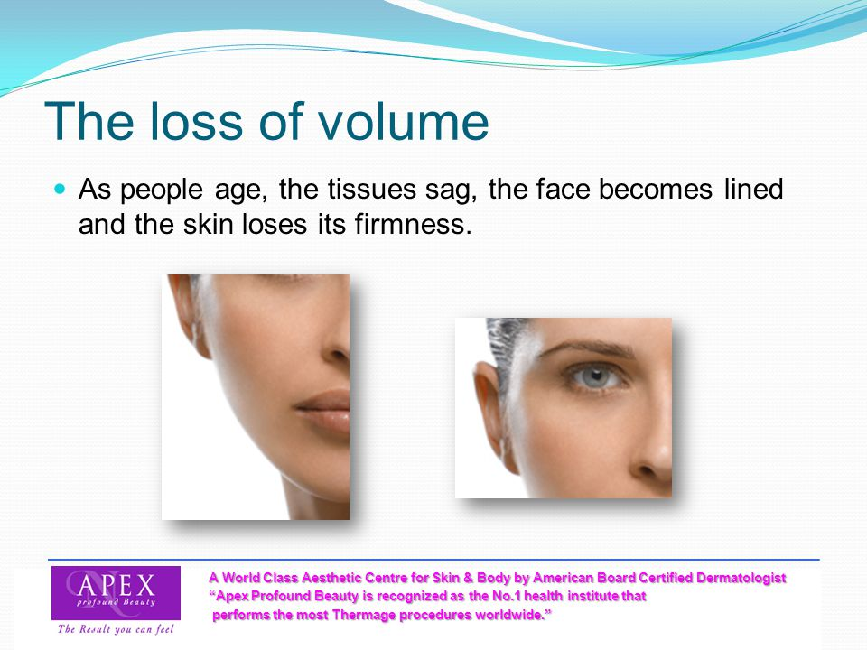The loss of volume As people age, the tissues sag, the face becomes lined and the skin loses its firmness.