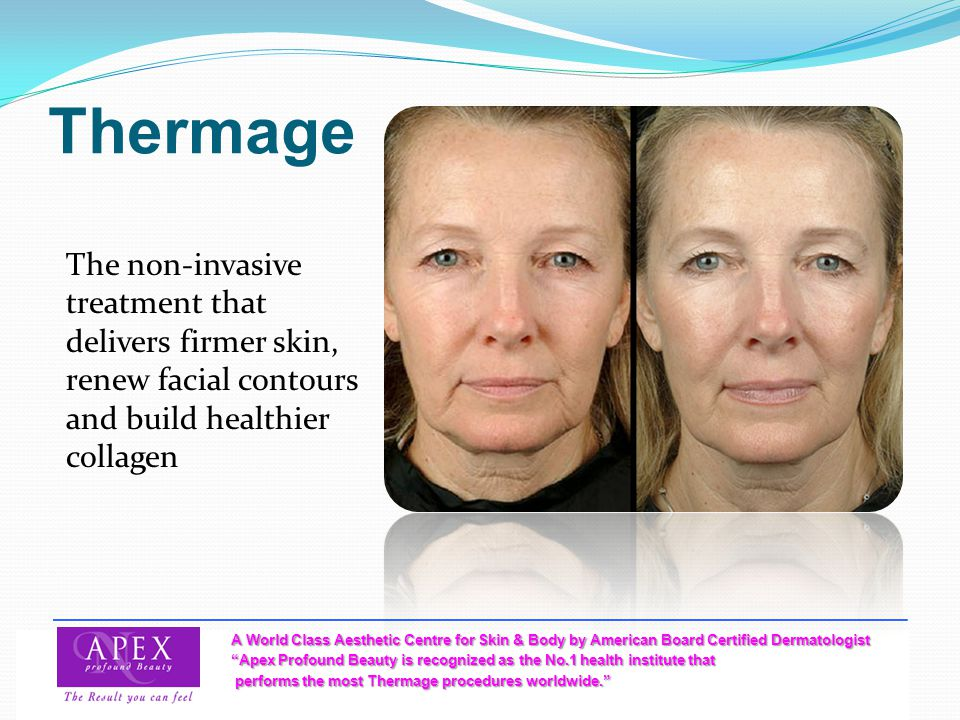 Thermage The non-invasive treatment that delivers firmer skin, renew facial contours and build healthier collagen.