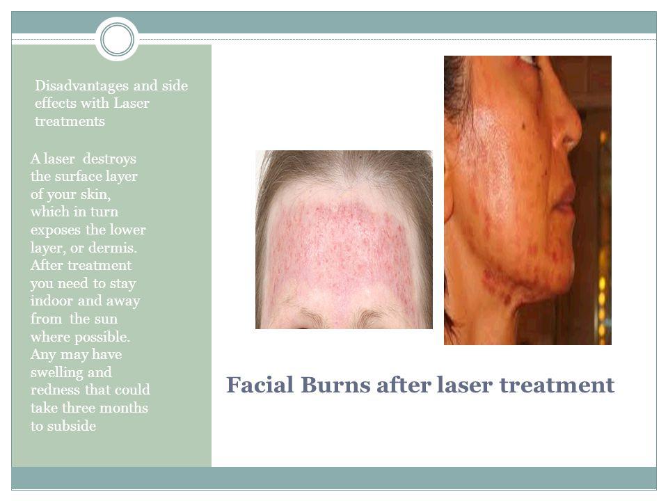 Facial Burns after laser treatment