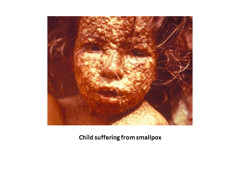 Child suffering from smallpox