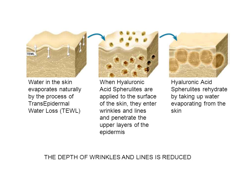 THE DEPTH OF WRINKLES AND LINES IS REDUCED