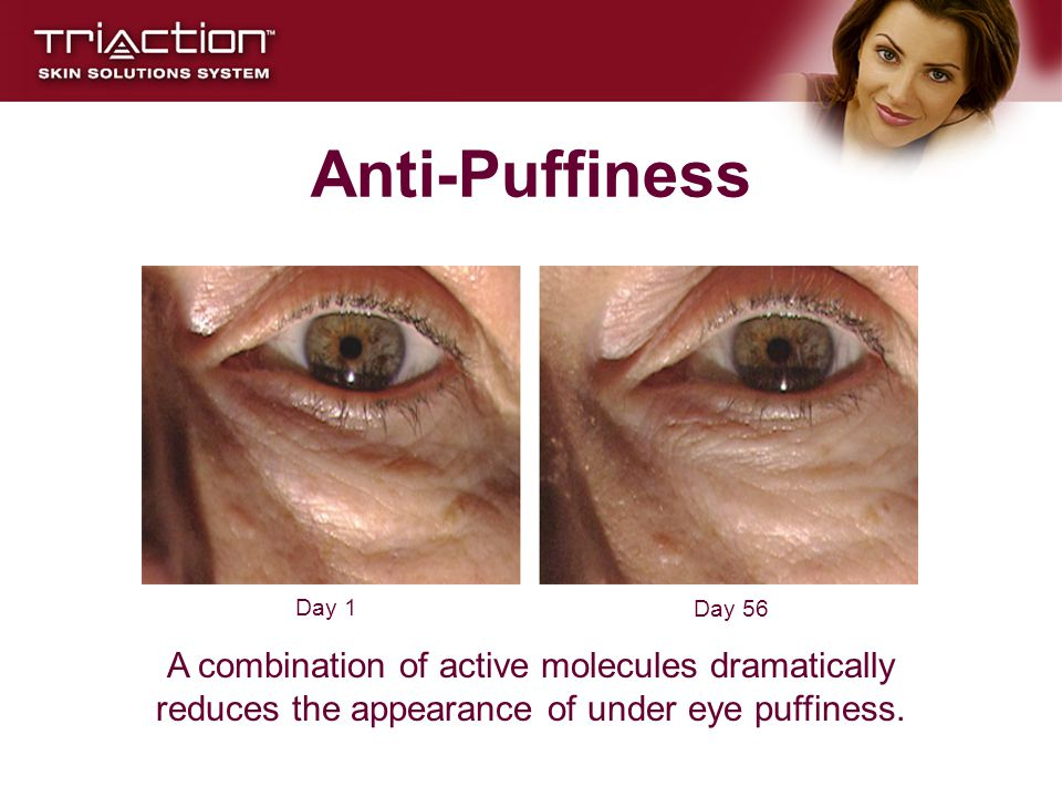 Anti-Puffiness Day 1. Day 56.