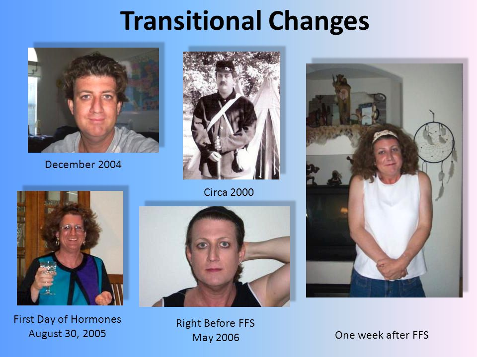 Transitional Changes December 2004 Circa 2000 First Day of Hormones