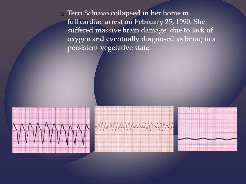 Terri Schiavo collapsed in her home in full cardiac arrest on February 25, 1990.