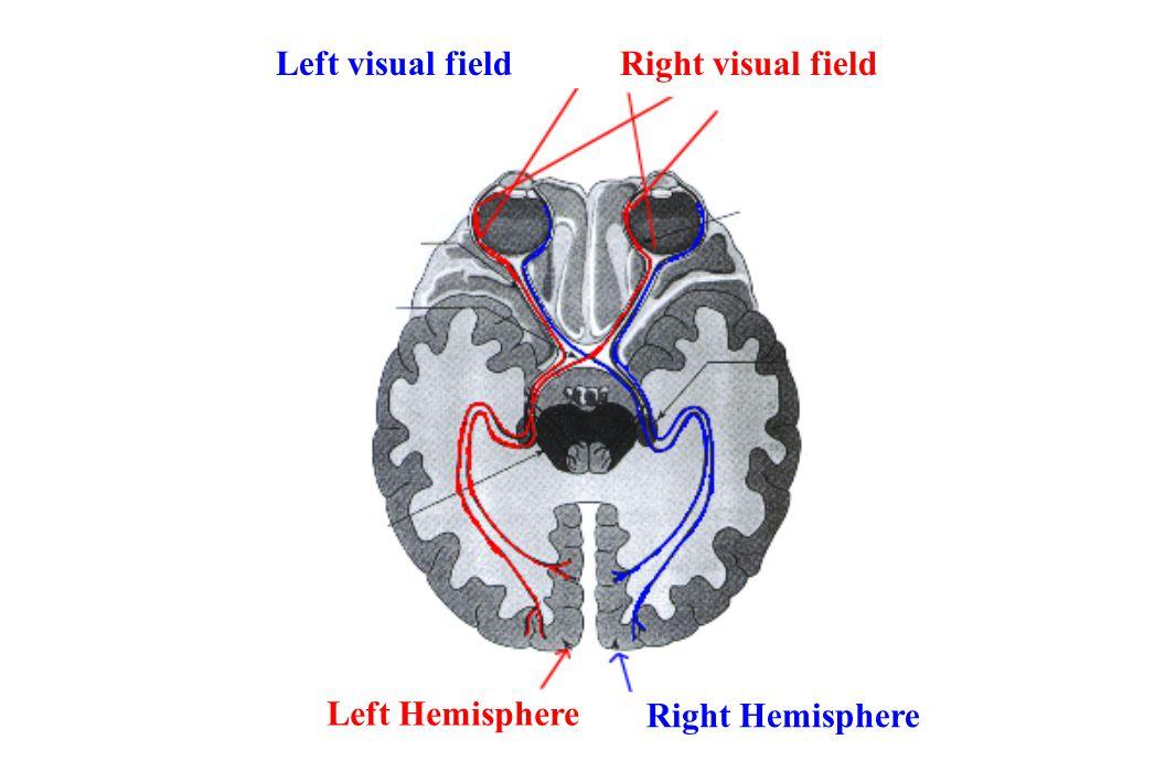 Left visual field Right visual field Left Hemisphere Right Hemisphere