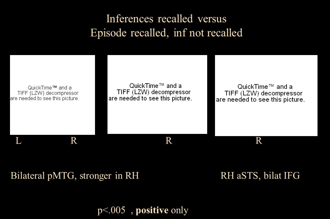 L R Post Ant L R Inferences recalled versus