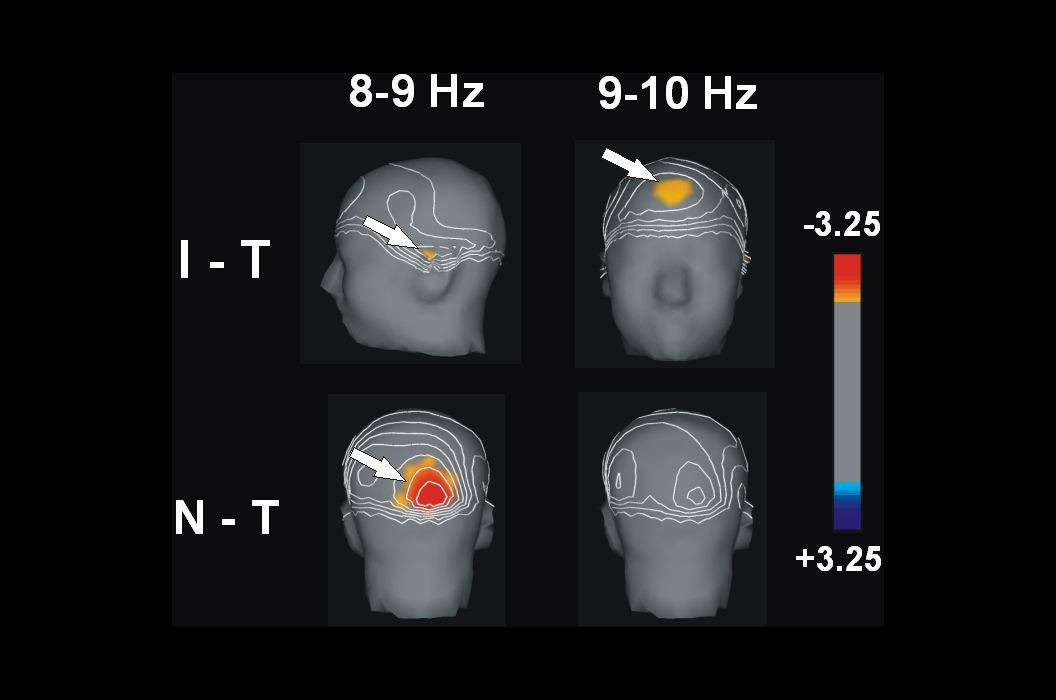 t Noninsight: More neural activity over right occipital cortex. More attention to the visual stimulus