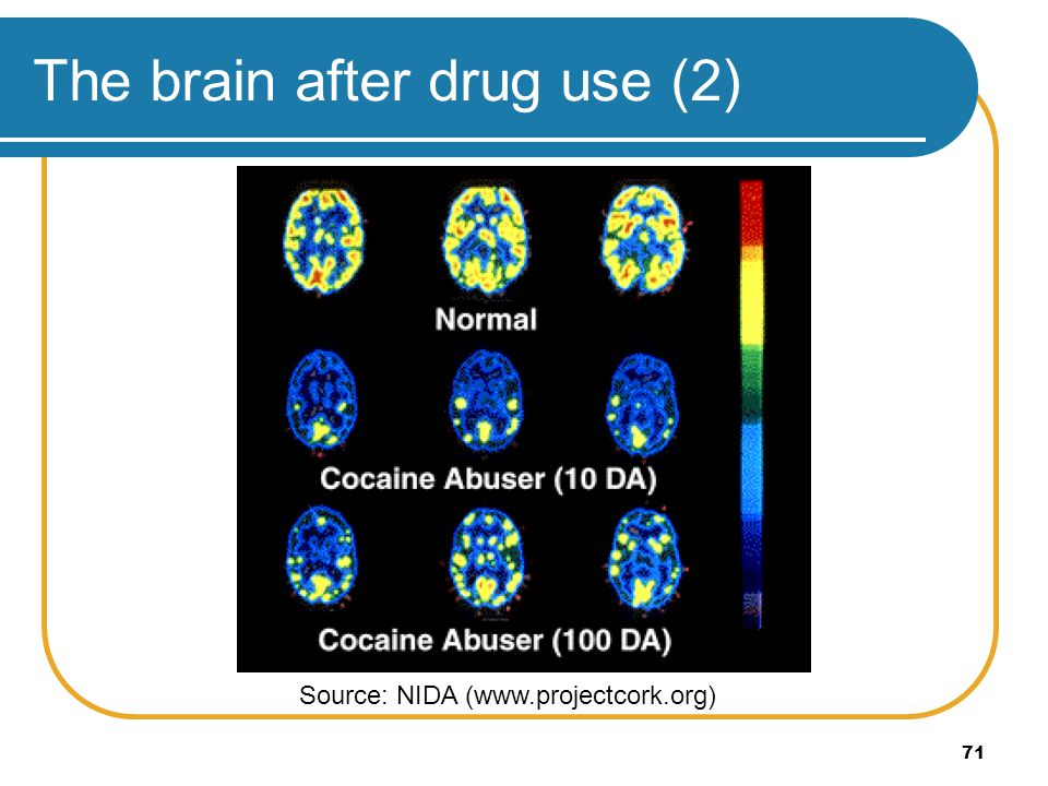 The brain after drug use (2)