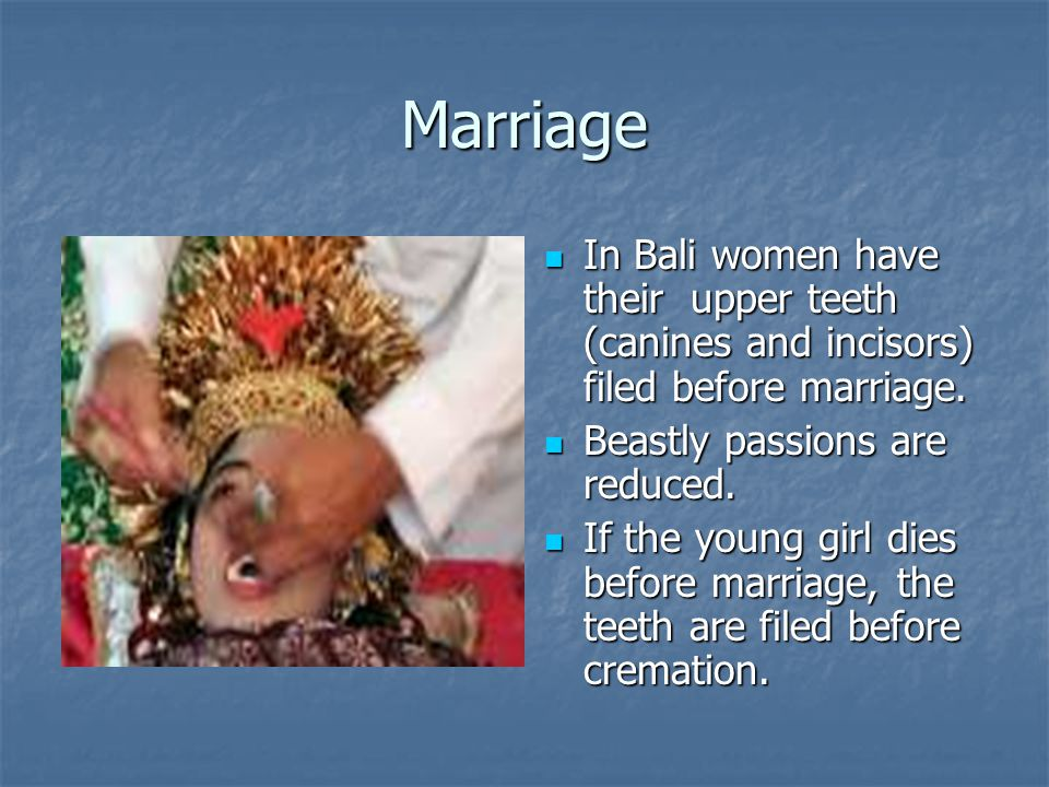 Marriage In Bali women have their upper teeth (canines and incisors) filed before marriage. Beastly passions are reduced.