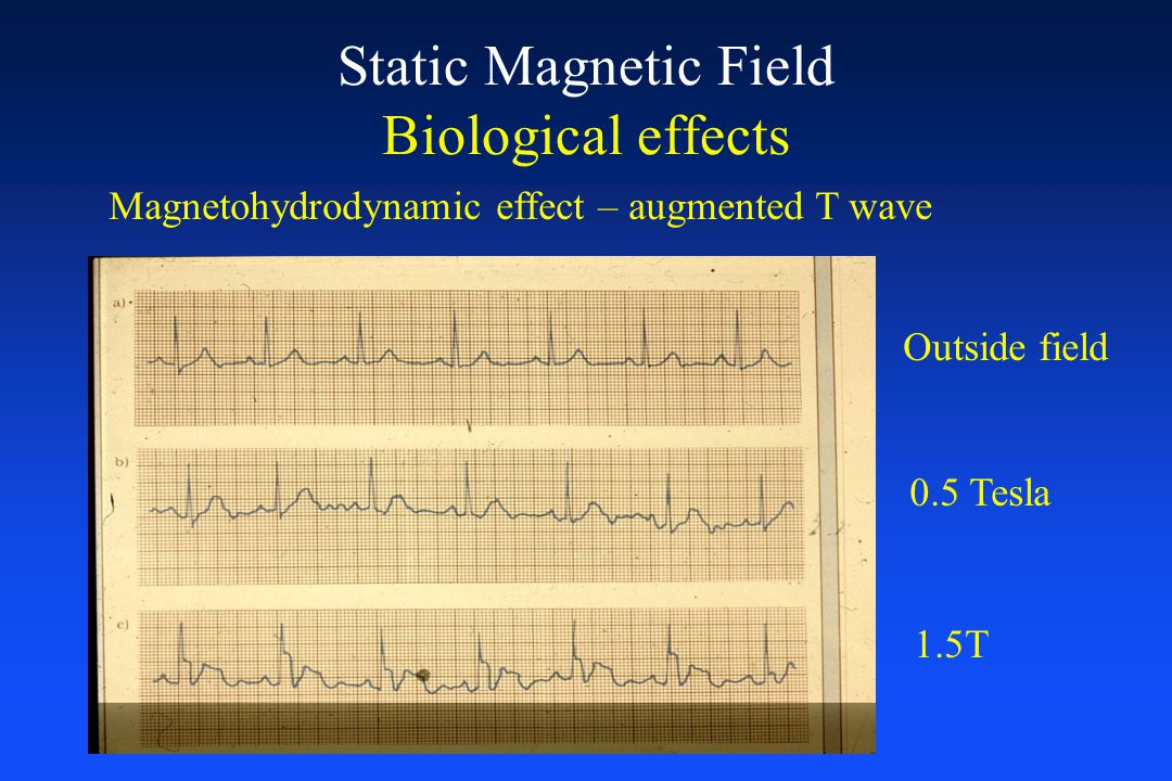 Static Magnetic Field Biological effects