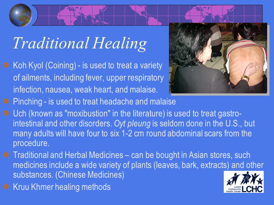 Traditional Healing Koh Kyol (Coining) - is used to treat a variety