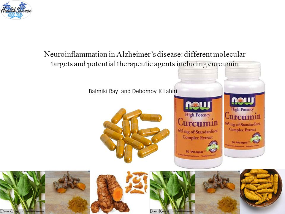 Neuroinflammation in Alzheimer's disease: different molecular