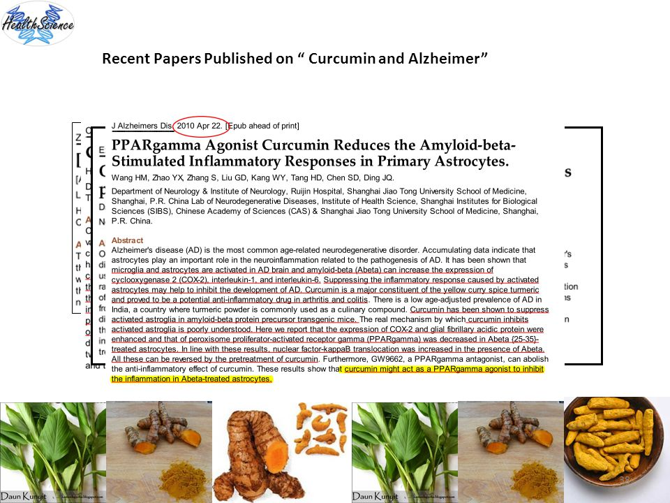 Recent Papers Published on Curcumin and Alzheimer