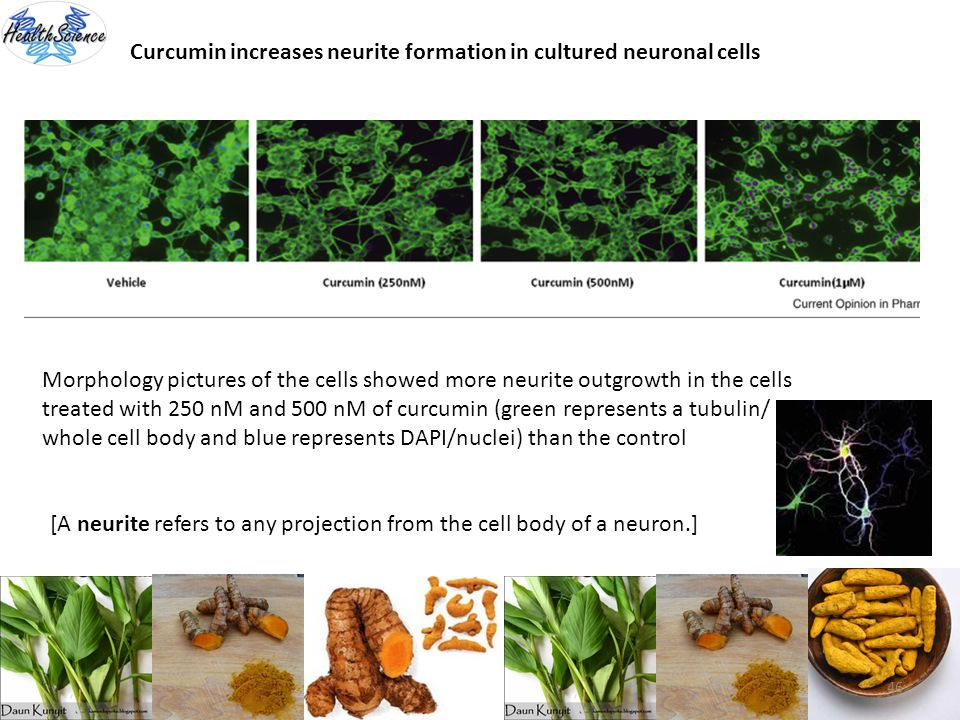 Curcumin increases neurite formation in cultured neuronal cells
