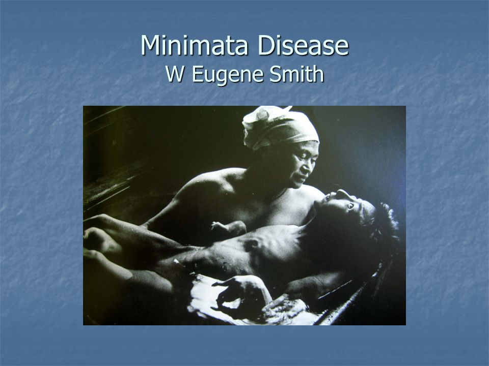 Minimata Disease W Eugene Smith