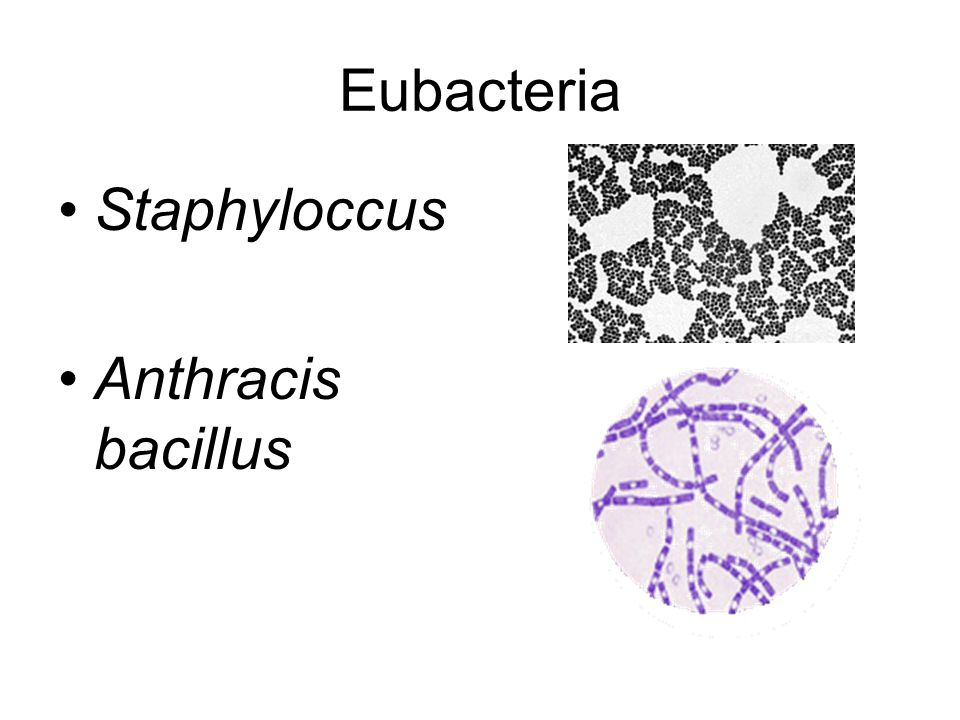 Eubacteria Staphyloccus Anthracis bacillus