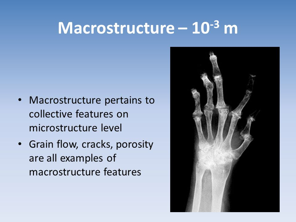Macrostructure – 10-3 m Macrostructure pertains to collective features on microstructure level.
