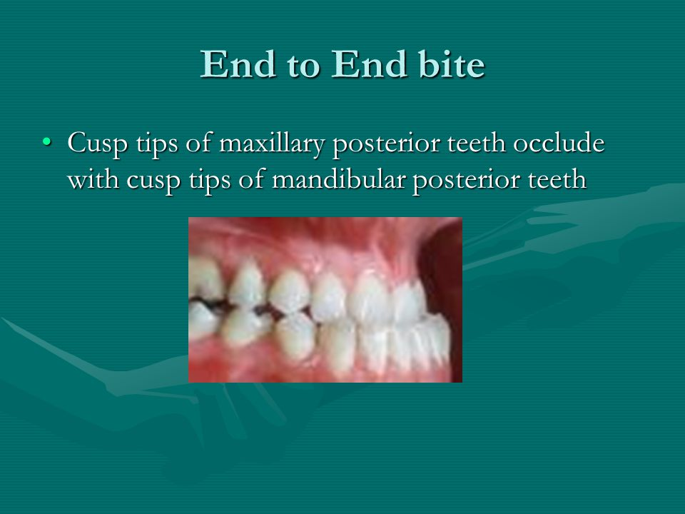End to End bite Cusp tips of maxillary posterior teeth occlude with cusp tips of mandibular posterior teeth.