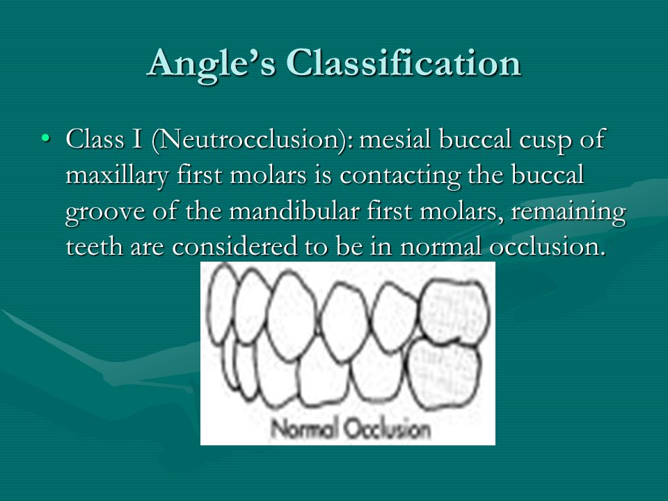 Angle's Classification