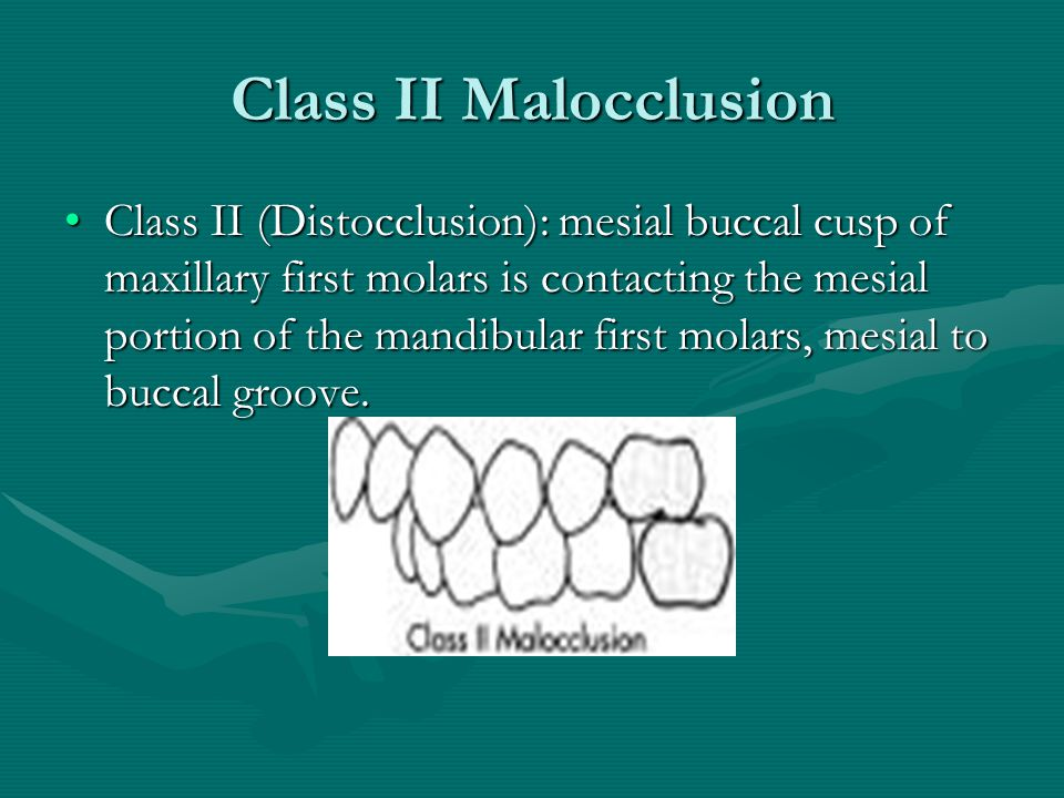 Class II Malocclusion