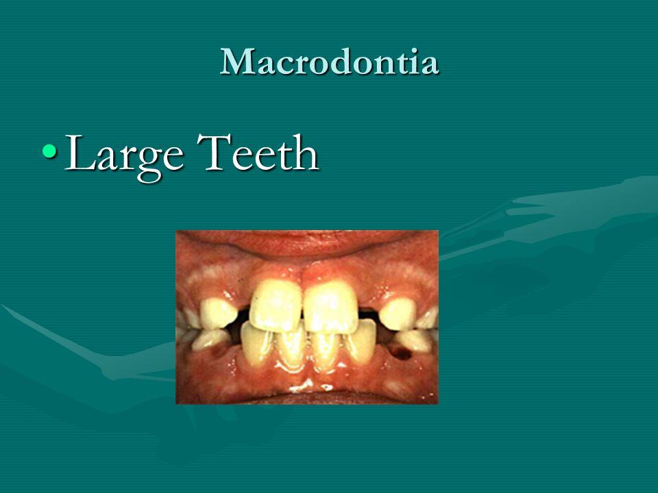 Macrodontia Large Teeth