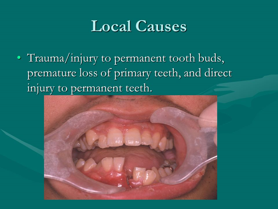 Local Causes Trauma/injury to permanent tooth buds, premature loss of primary teeth, and direct injury to permanent teeth.