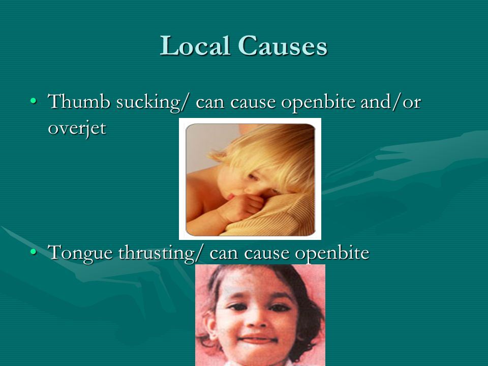 Local Causes Thumb sucking/ can cause openbite and/or overjet