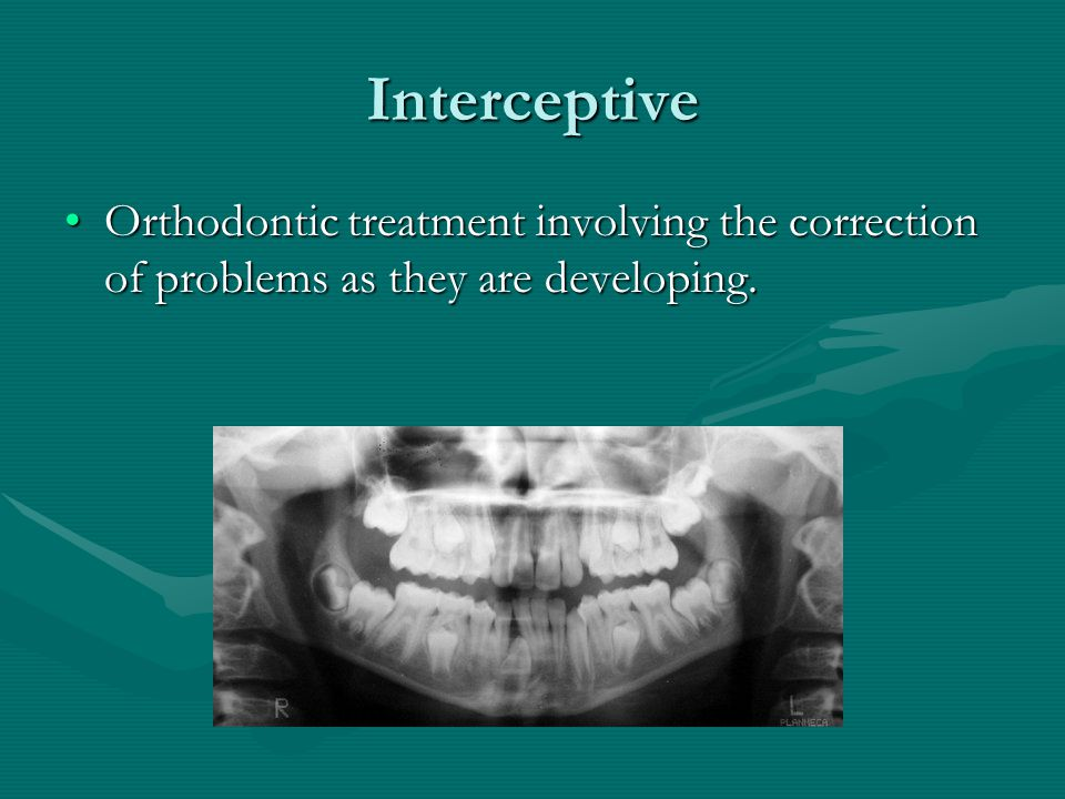 Interceptive Orthodontic treatment involving the correction of problems as they are developing.