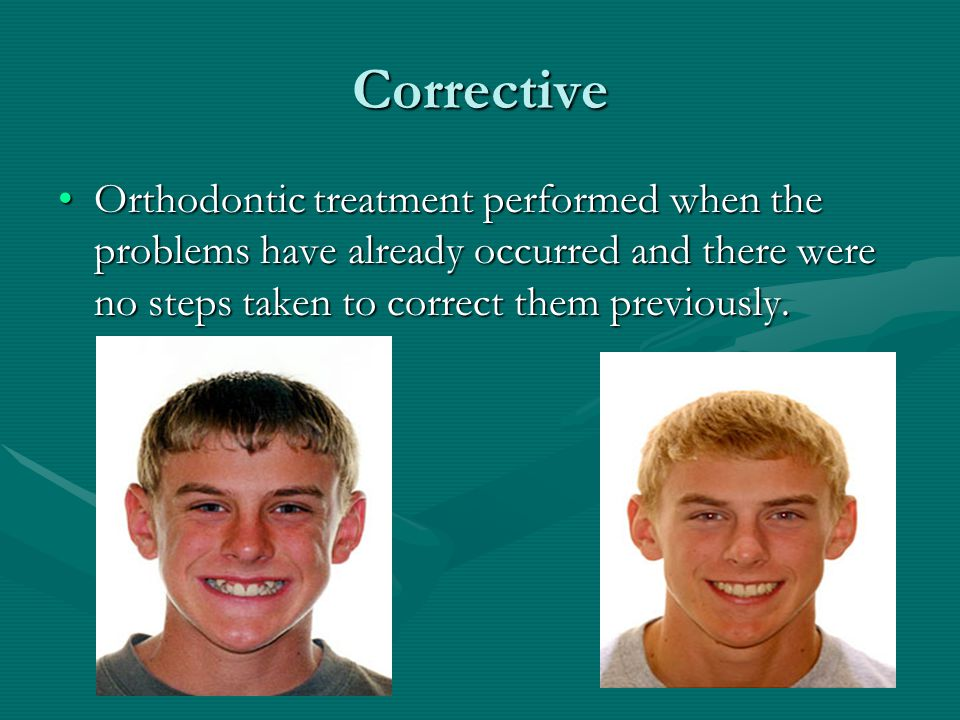 Corrective Orthodontic treatment performed when the problems have already occurred and there were no steps taken to correct them previously.