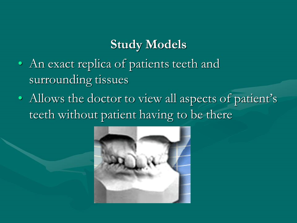 Study Models An exact replica of patients teeth and surrounding tissues.