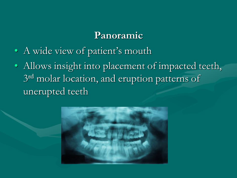 Panoramic A wide view of patient's mouth.