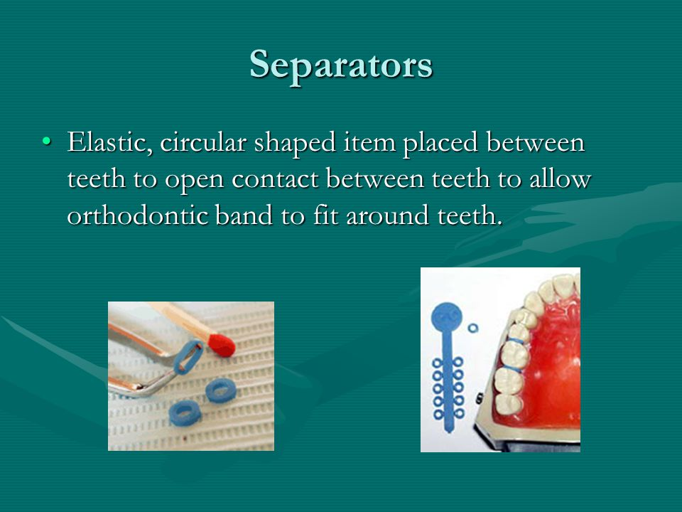 Separators Elastic, circular shaped item placed between teeth to open contact between teeth to allow orthodontic band to fit around teeth.