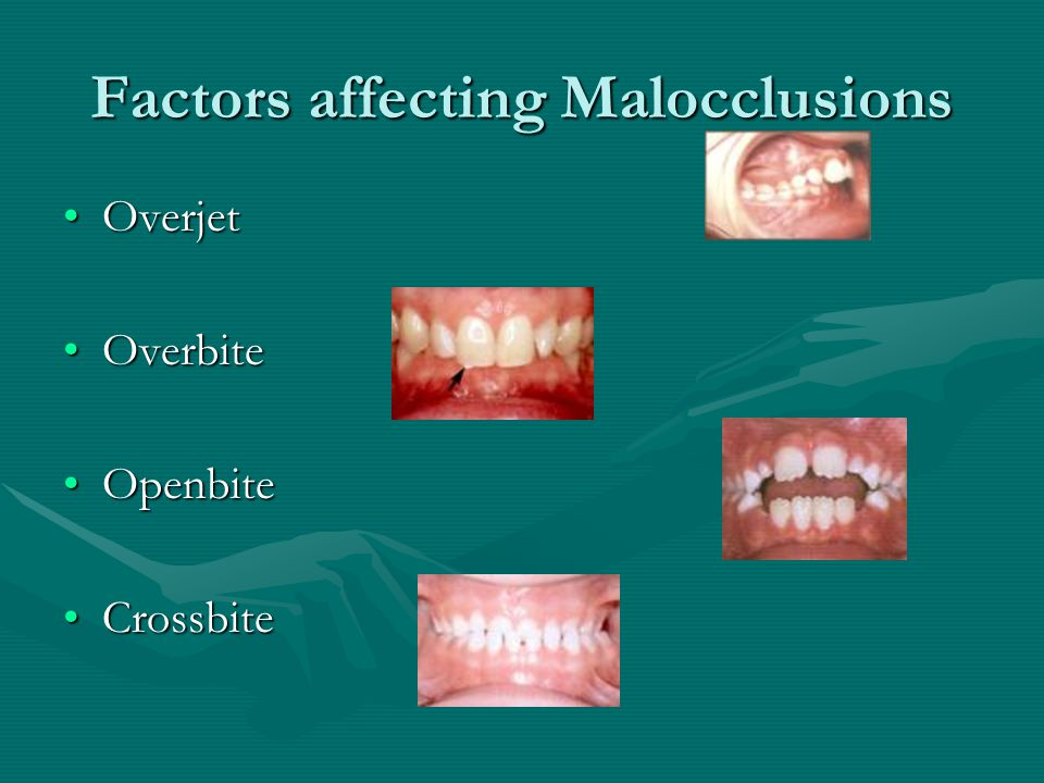 Factors affecting Malocclusions