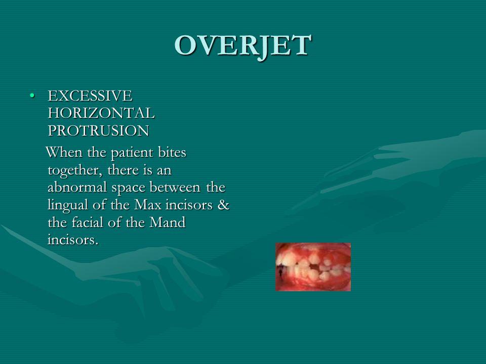 OVERJET EXCESSIVE HORIZONTAL PROTRUSION